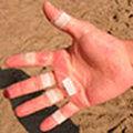 Kłopoty z dłońmi